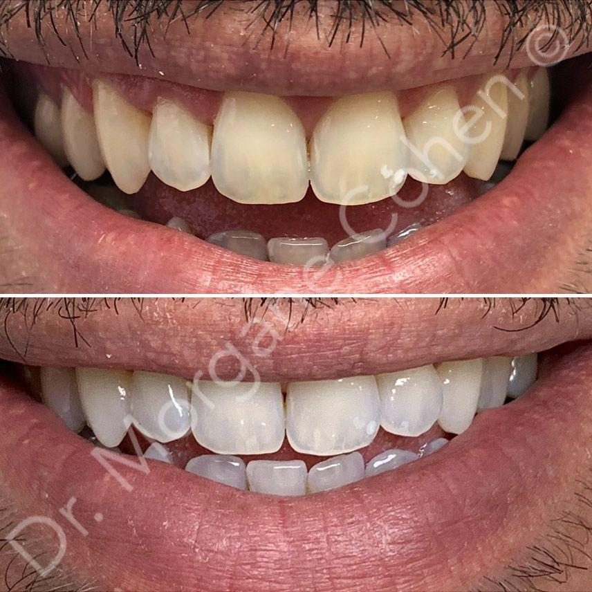 Avant-après blanchiment dentaire 3 à Paris   Dr Cohen