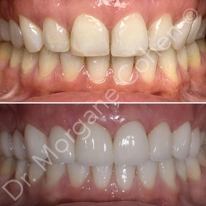 Avant-après facettes dentaires 39 à Paris | Dr Cohen
