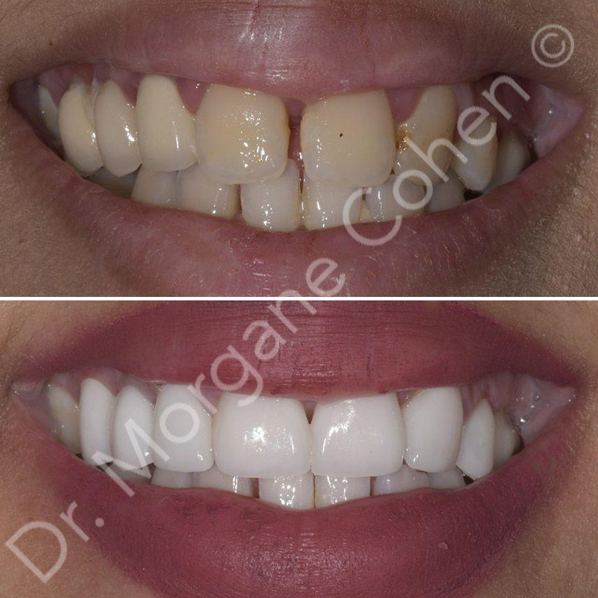 Avant-après facettes dentaires 45 à Paris | Dr Cohen