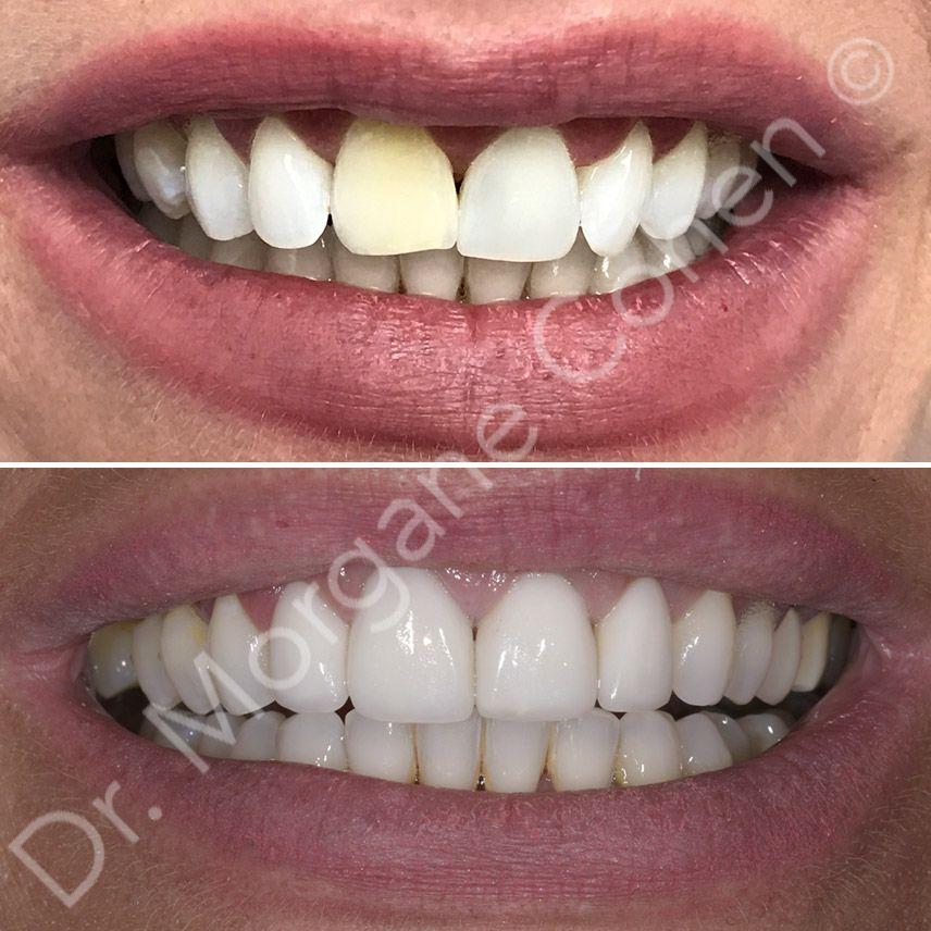 Avant-après facettes dentaires 36 à Paris | Dr Cohen