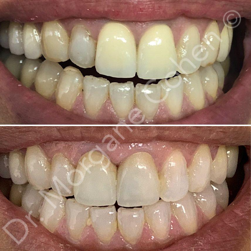 Avant-après facettes dentaires 35 à Paris | Dr Cohen