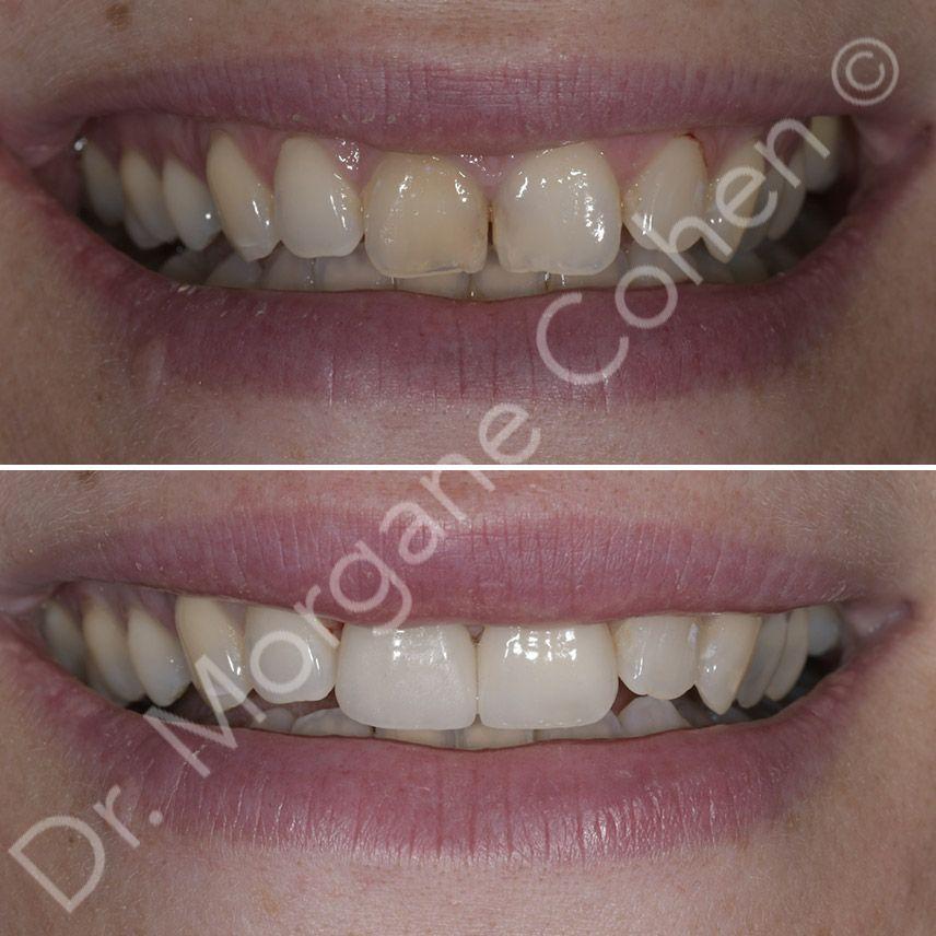 Avant-après facettes dentaires 37 à Paris | Dr Cohen