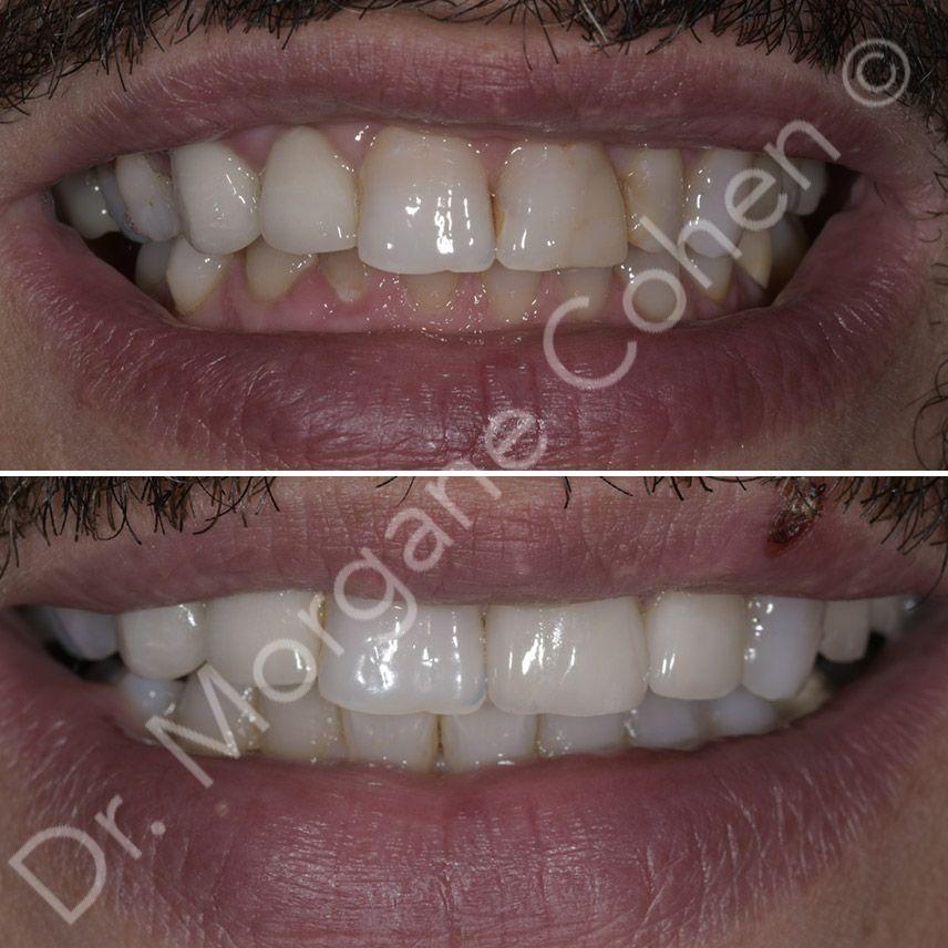 Avant-après facettes dentaires 2 à Paris | Dr Cohen