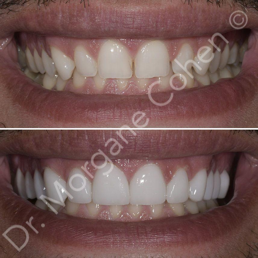 Avant-après facettes dentaires 41 à Paris | Dr Cohen