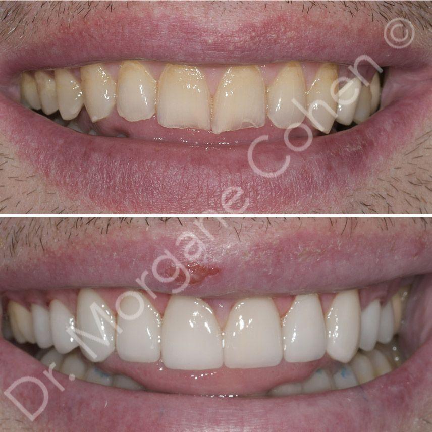 Avant-après facettes dentaires 27 à Paris   Dr Cohen