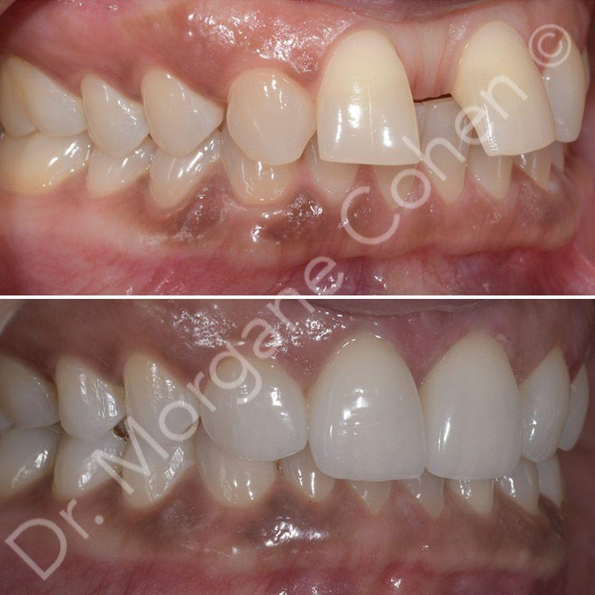 Avant-après facettes dentaires 42 à Paris | Dr Cohen