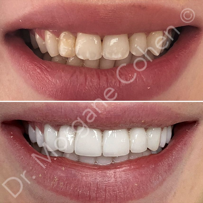 Avant-après facettes dentaires 28 à Paris | Dr Cohen