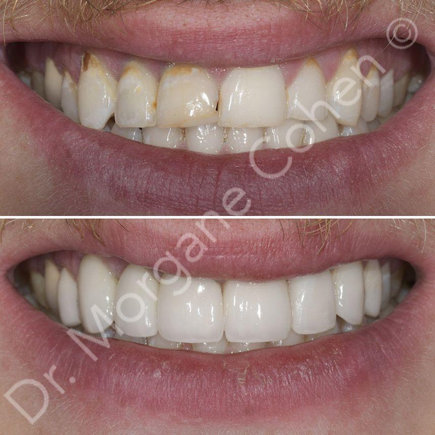 Avant-après facettes dentaires 23 à Paris | Dr Cohen