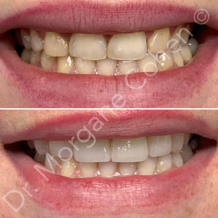 Avant-après facettes dentaires 30 à Paris | Dr Cohen