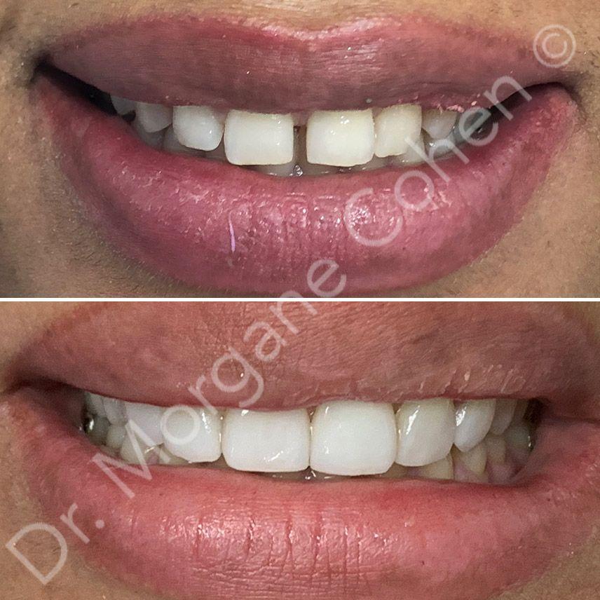 Avant-après facettes dentaires 46 à Paris | Dr Cohen