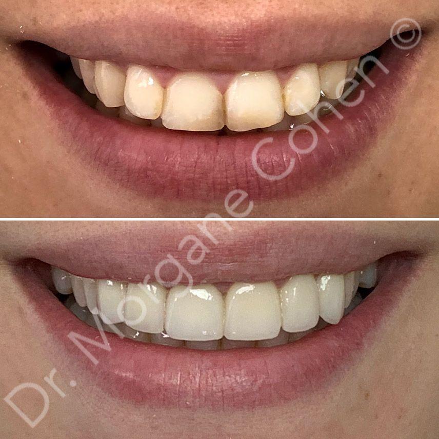 Avant-après facettes dentaires 29 à Paris   Dr Cohen