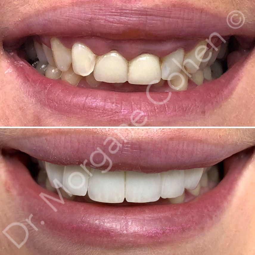Avant-après facettes dentaires 25 à Paris | Dr Cohen