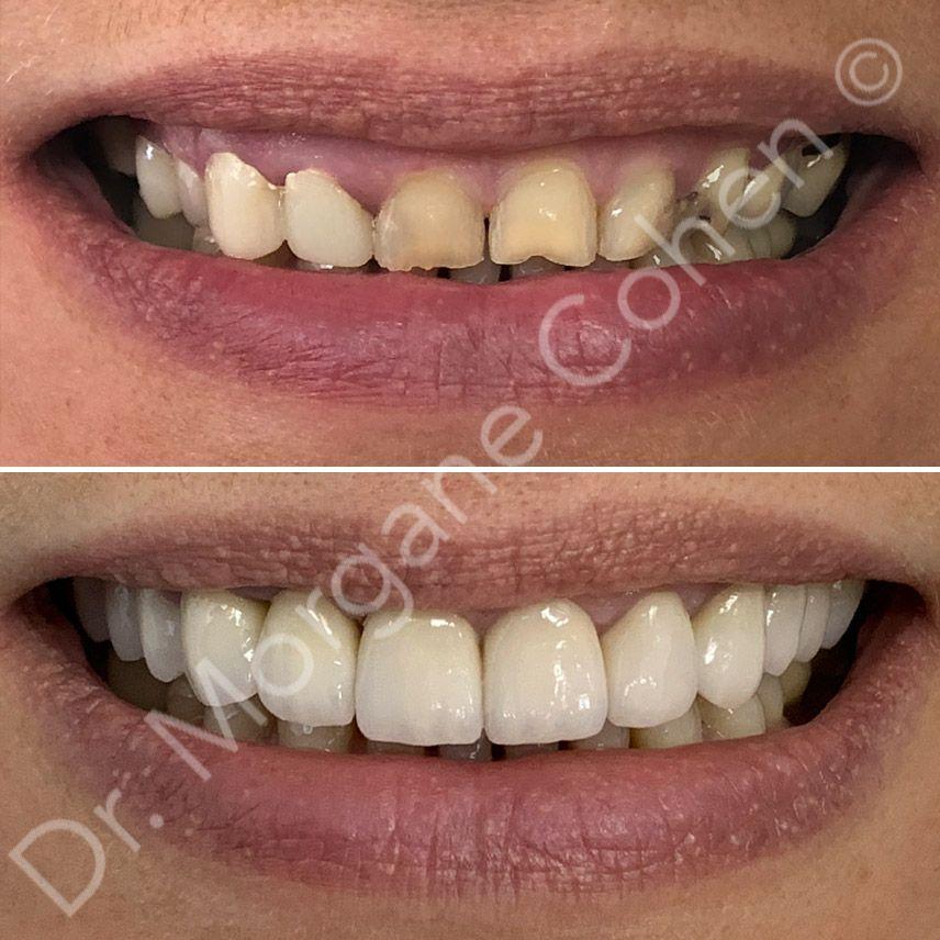 Avant-après facettes dentaires 15 à Paris | Dr Cohen
