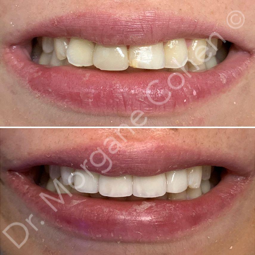 Avant-après facettes dentaires 16 à Paris | Dr Cohen