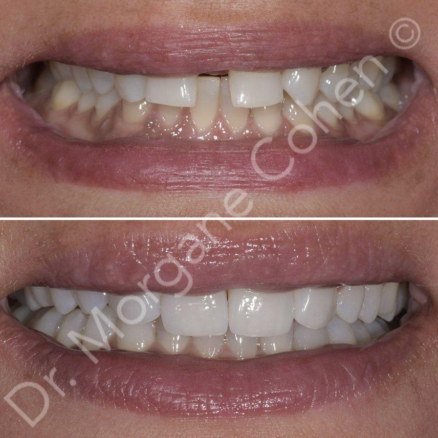 Avant-après facettes dentaires 38 à Paris | Dr Cohen