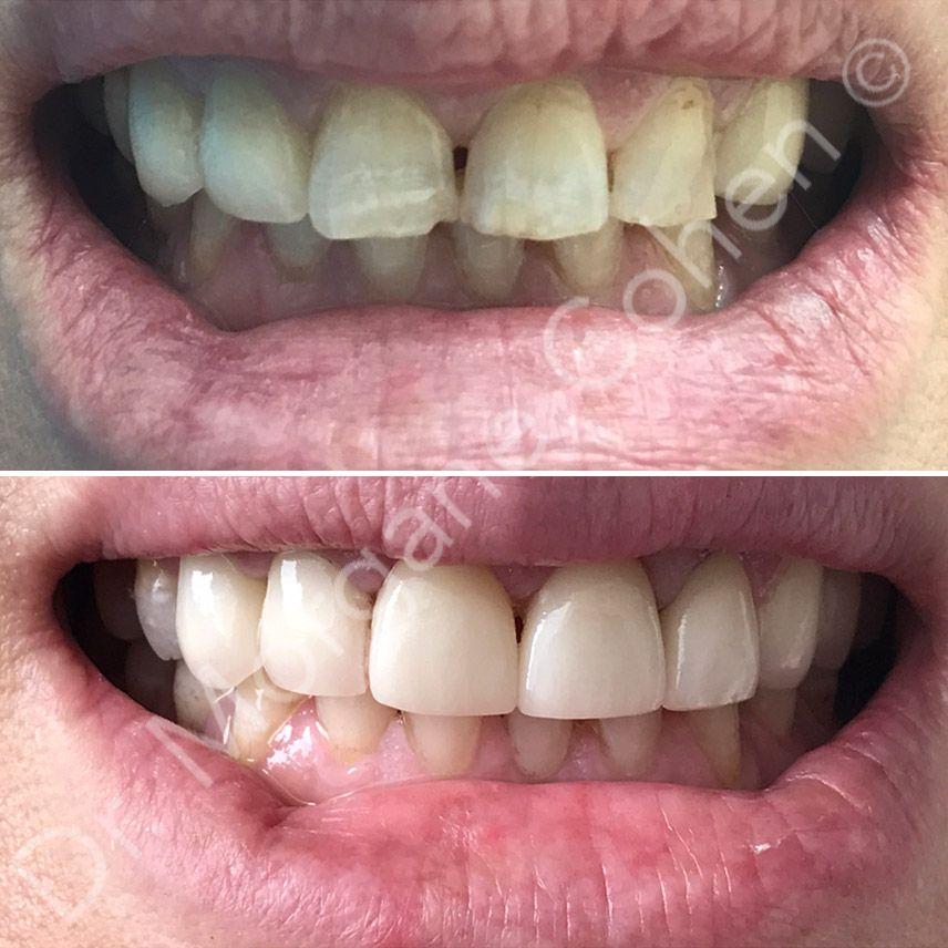 Avant-après facettes dentaires 43 à Paris | Dr Cohen