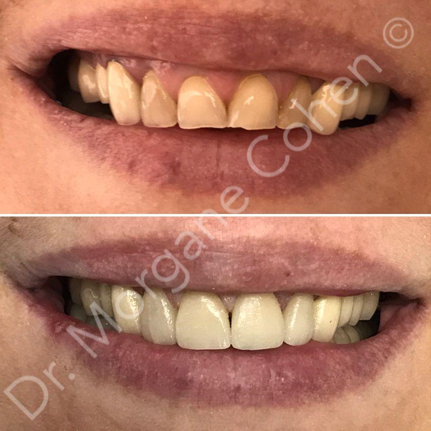Avant-après facettes dentaires 12 à Paris | Dr Cohen
