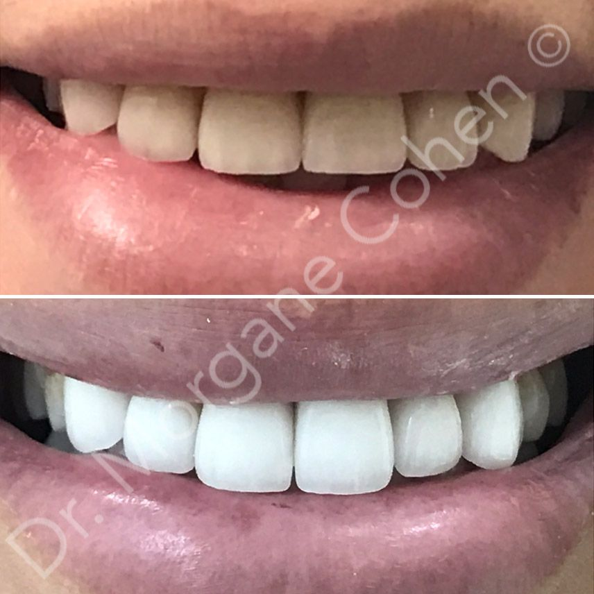 Avant-après facettes dentaires 18 à Paris | Dr Cohen