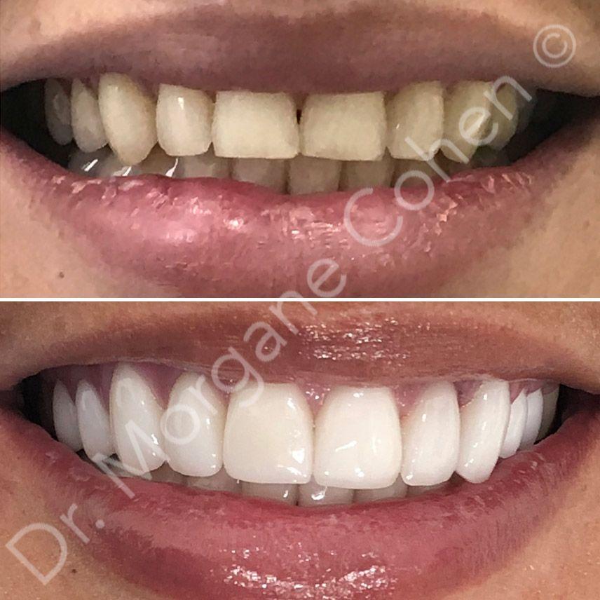 Avant-après facettes dentaires 20 à Paris | Dr Cohen