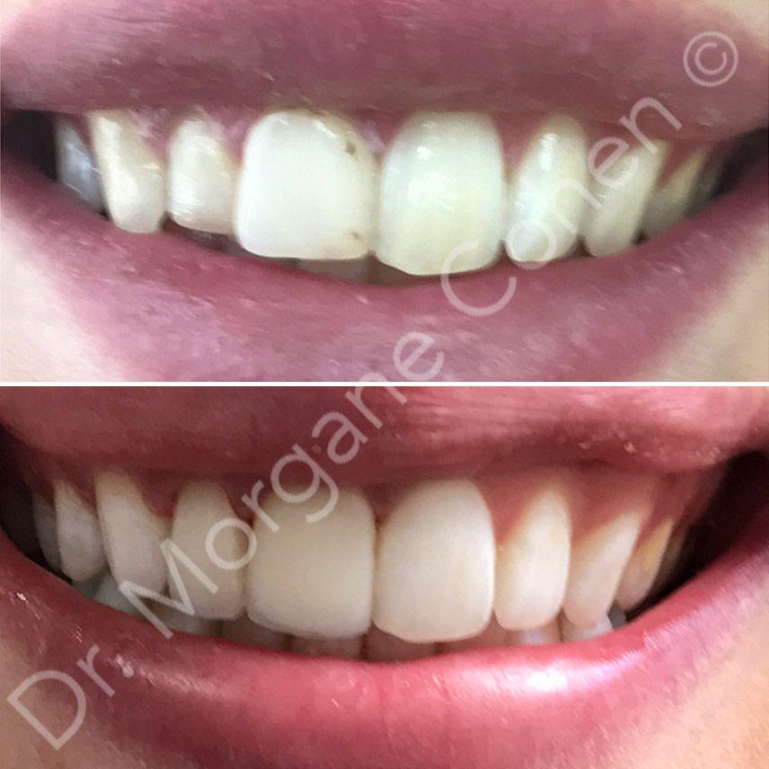 Avant-après facettes dentaires 1 à Paris | Dr Cohen