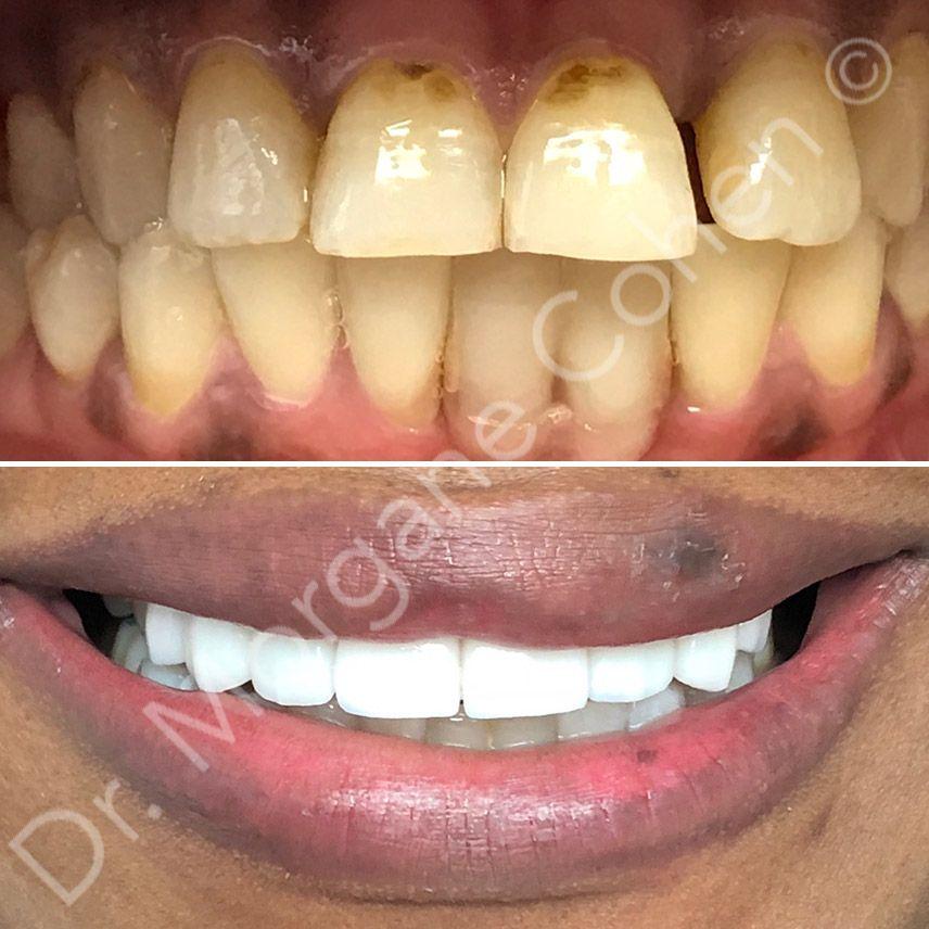 Avant-après facettes dentaires 17 à Paris | Dr Cohen