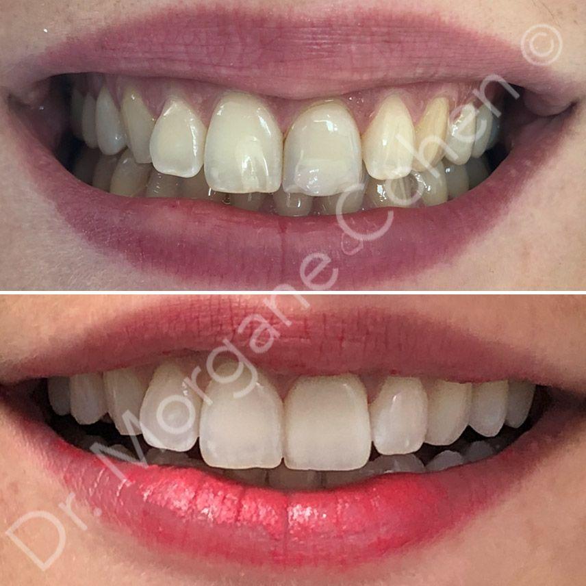 Avant-après facettes dentaires 13 à Paris | Dr Cohen