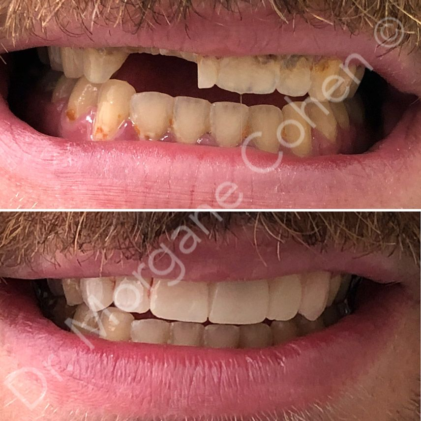 Avant-après facettes dentaires 19 à Paris | Dr Cohen