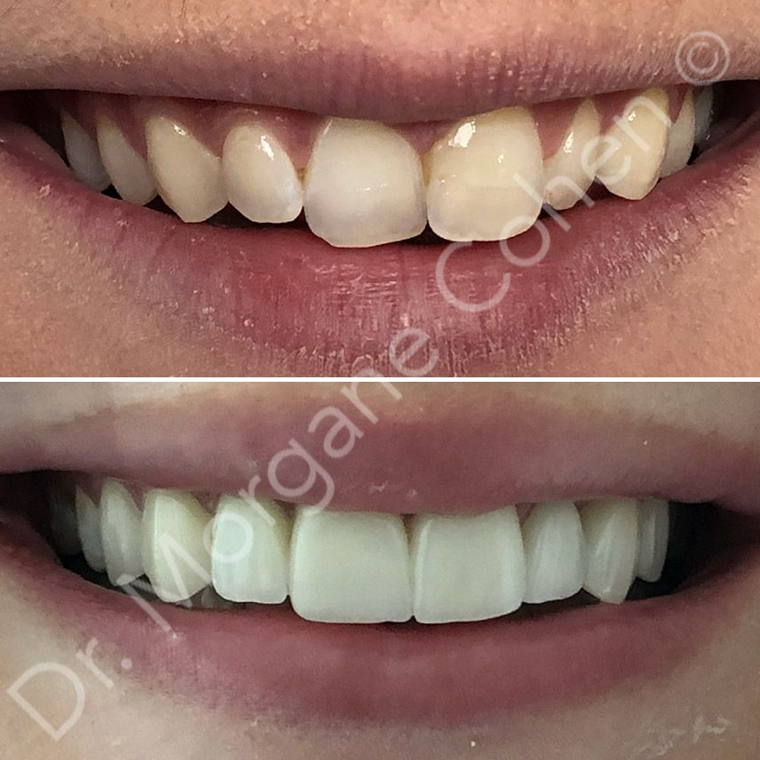 Avant-après facettes dentaires 14 à Paris | Dr Cohen