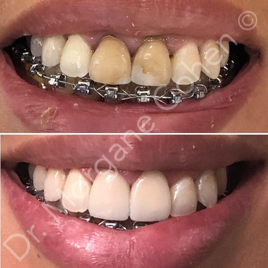 Avant-après facettes dentaires à Paris | Dr Cohen