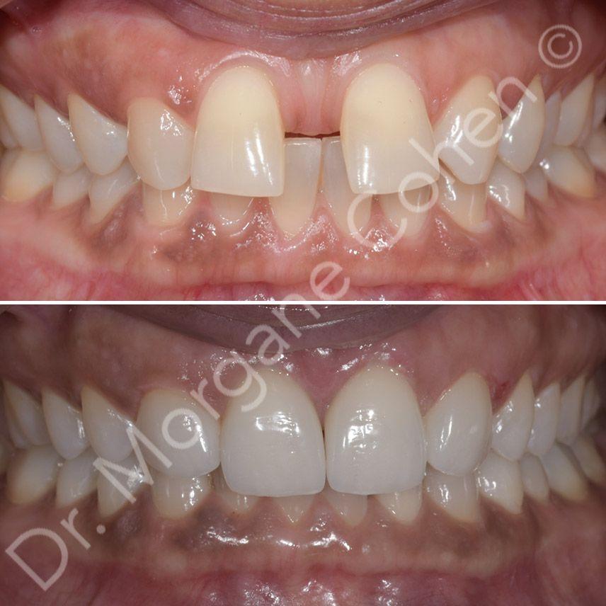 Avant-après facettes dentaires 34 à Paris | Dr Cohen
