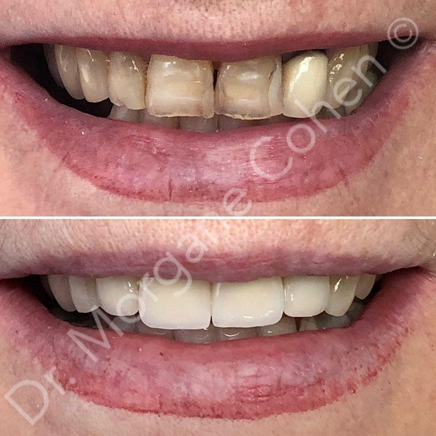 Avant-après facettes dentaires 4 à Paris | Dr Cohen