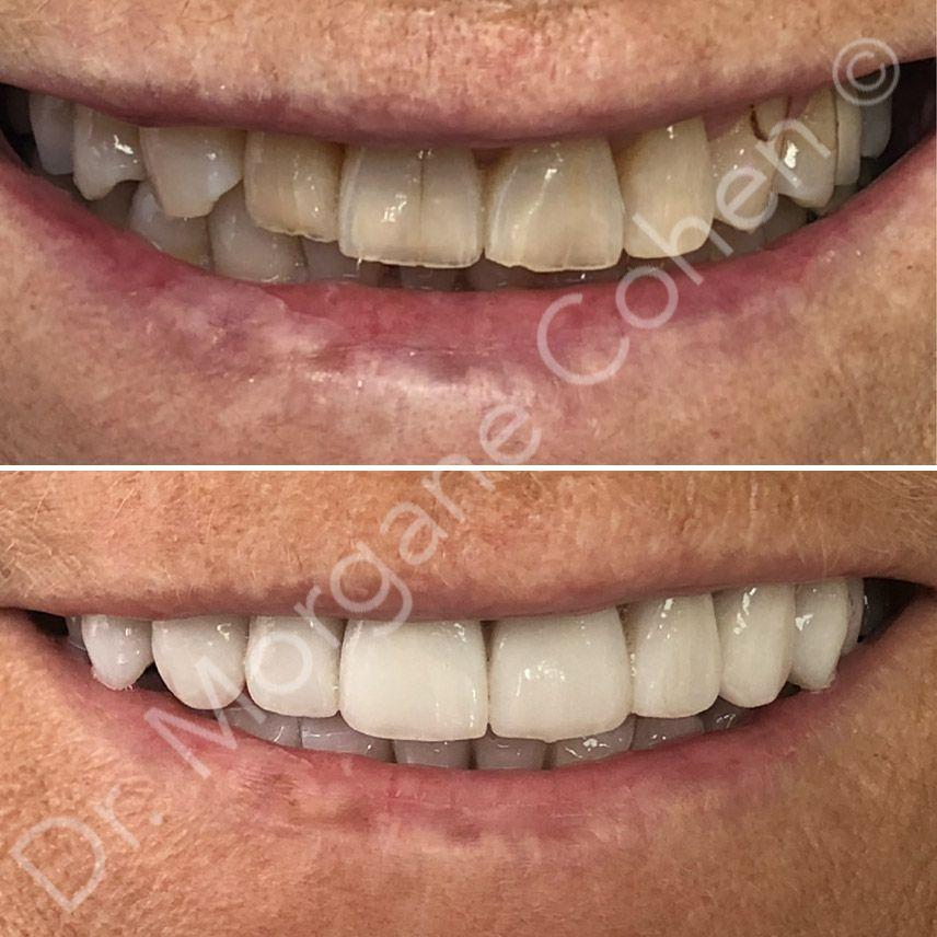 Avant-après facettes dentaires 9 à Paris | Dr Cohen