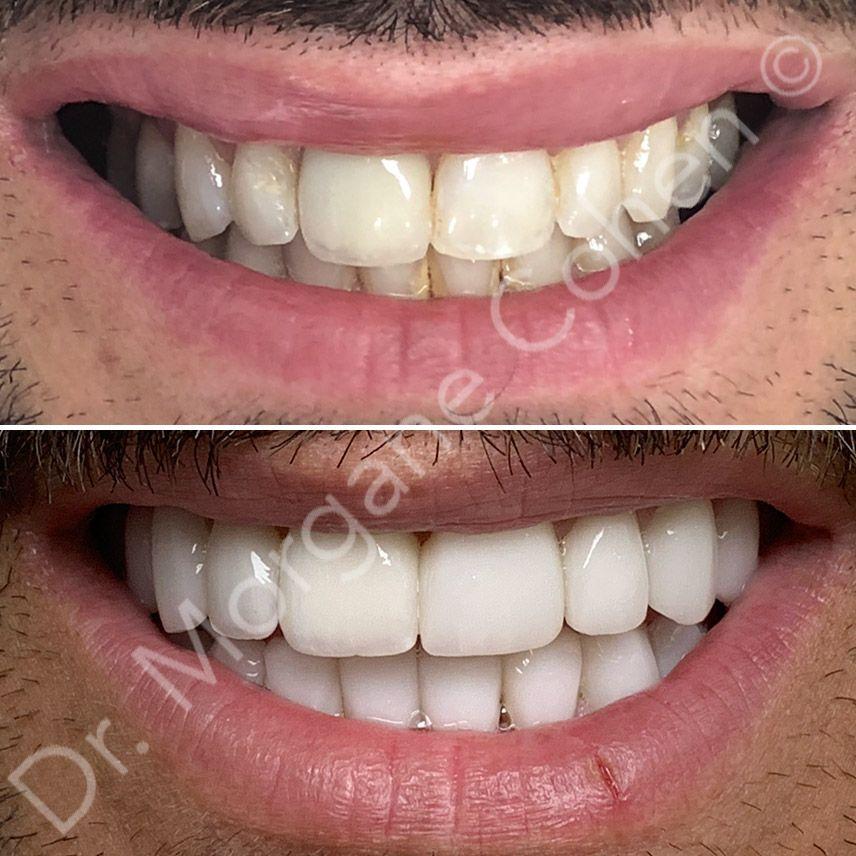 Résultats après facettes dentaires à Paris | Dr Cohen