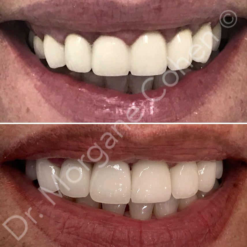 Avant-après facettes dentaires 11 à Paris | Dr Cohen