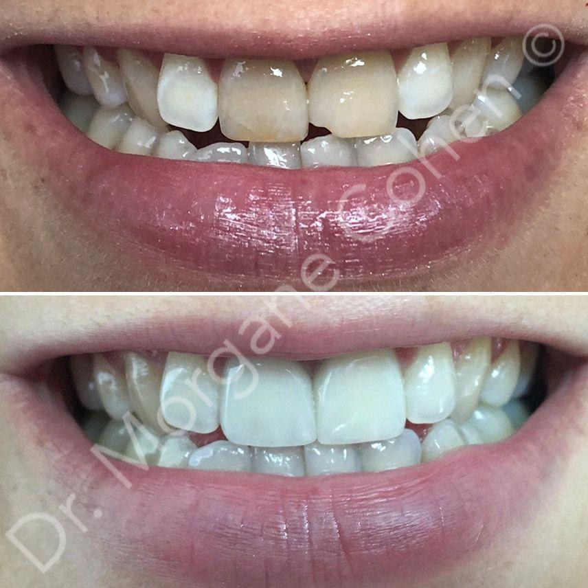 Efficacité des facettes dentaires à Paris | Dr Cohen