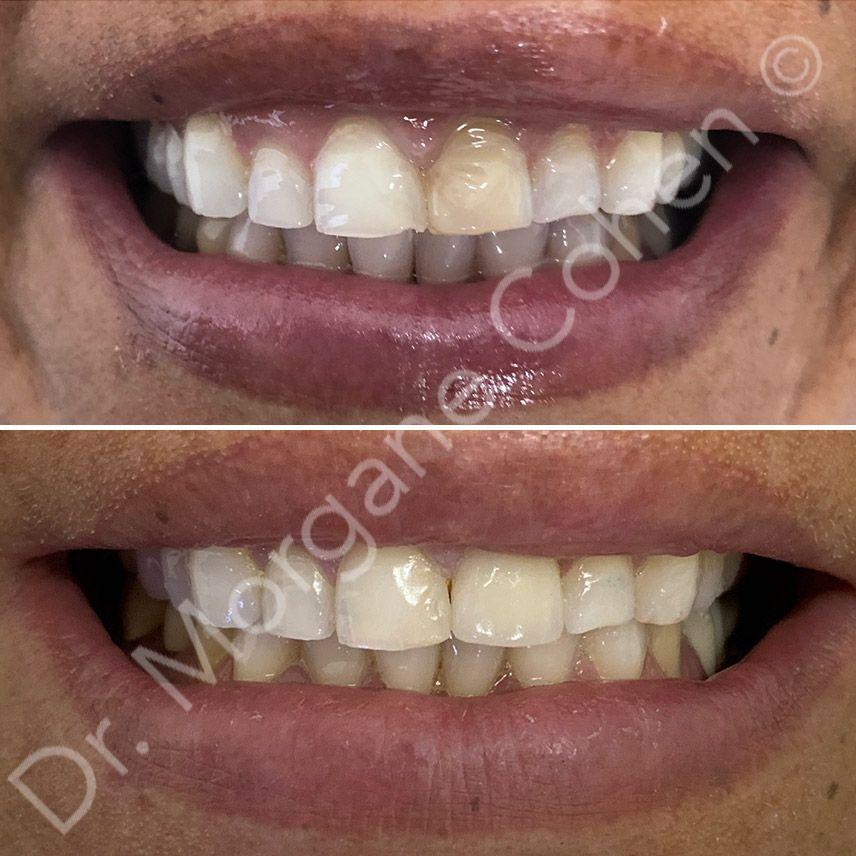 Avant-après facettes dentaires 3 à Paris | Dr Cohen