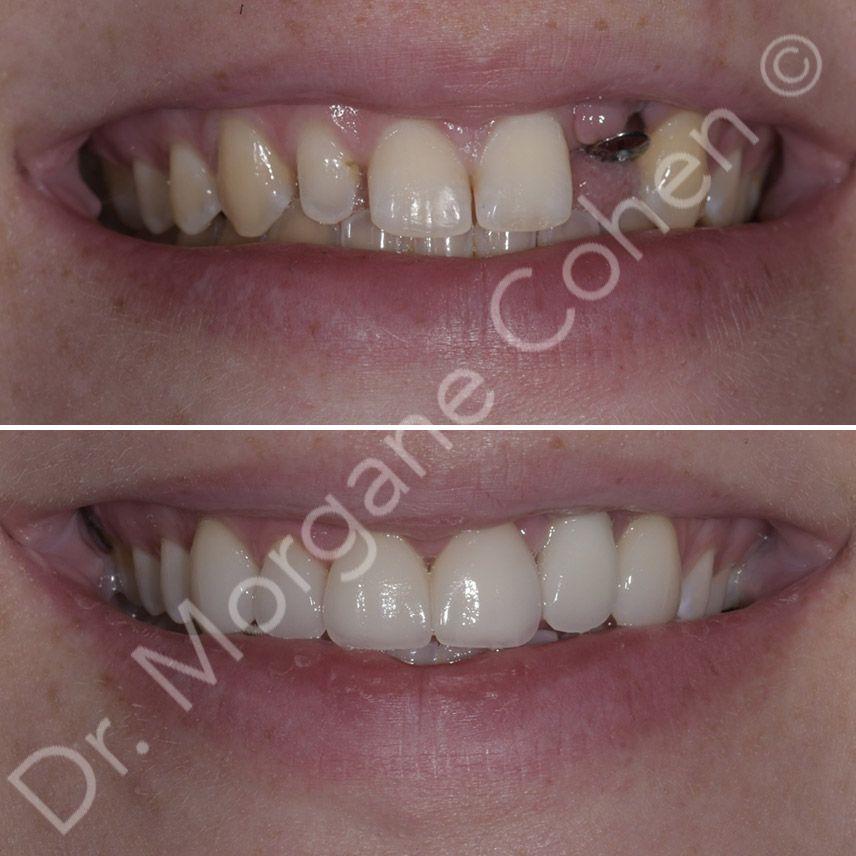 Avant-après facettes dentaires 10 à Paris | Dr Cohen