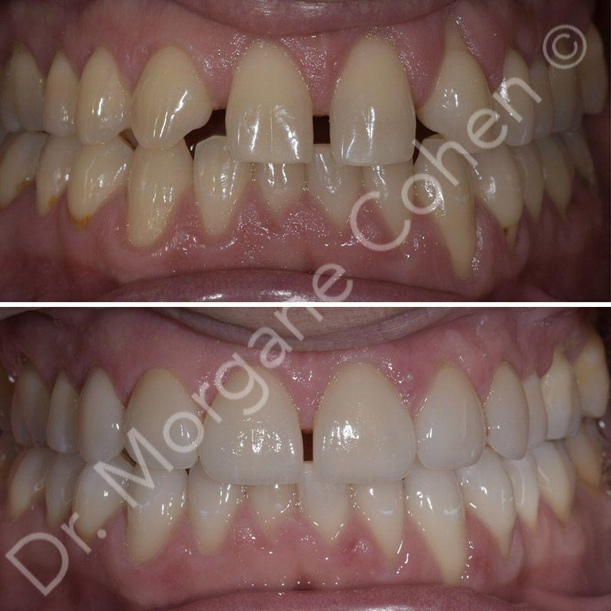 Avant-après facettes dentaires 5 à Paris | Dr Cohen