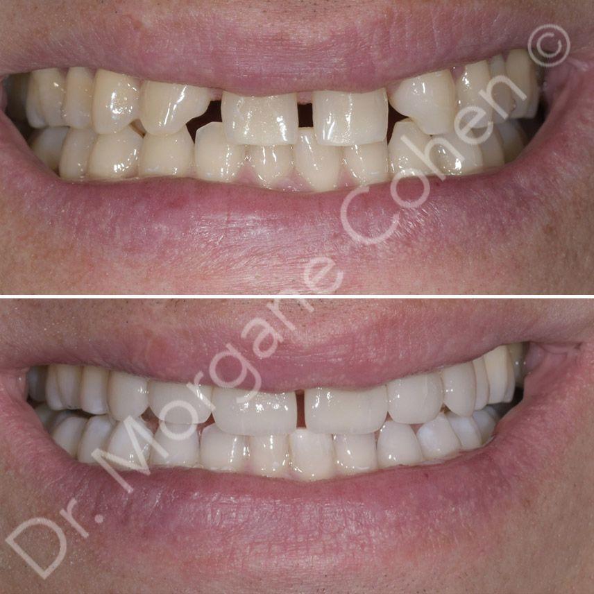 Avant-après facettes dentaires 7 à Paris | Dr Cohen