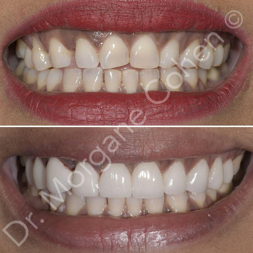 Avant-après facettes dentaires 44 à Paris | Dr Cohen