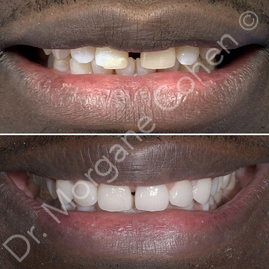 Avant-après facettes dentaires 6 à Paris | Dr Cohen