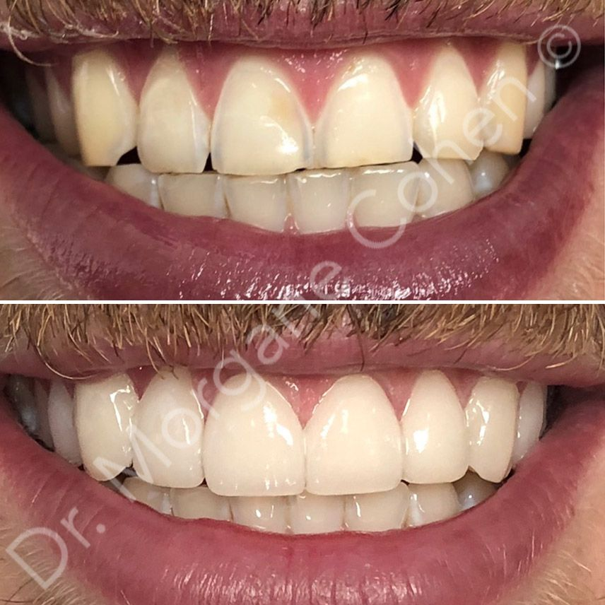 Avant-après facettes dentaires 8 à Paris | Dr Cohen