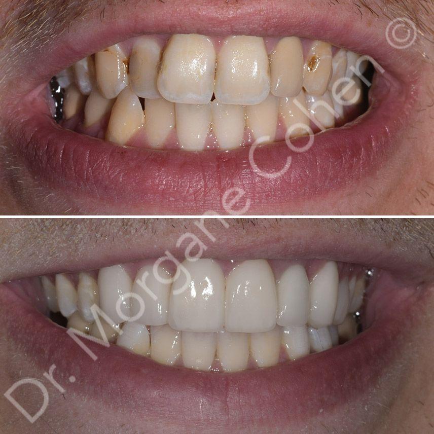 Avant-après facettes dentaires 32 à Paris | Dr Cohen