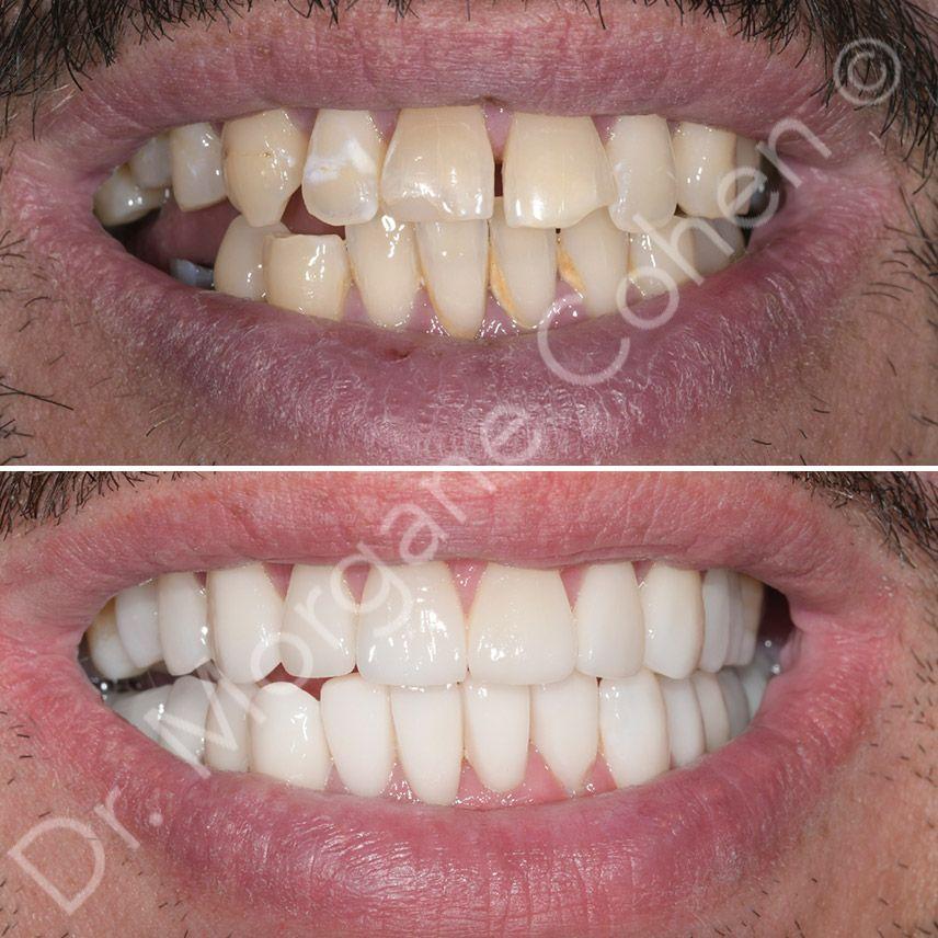 Avant-après facettes dentaires 33 à Paris | Dr Cohen