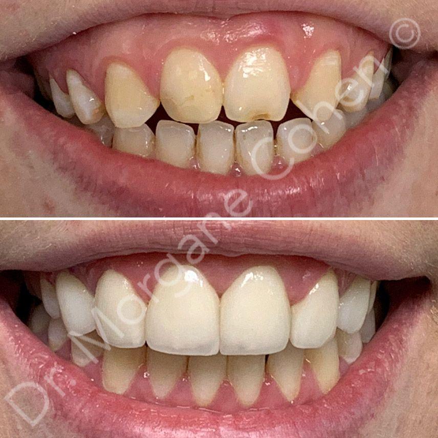 Efficacité facettes dentaires | Dr Cohen