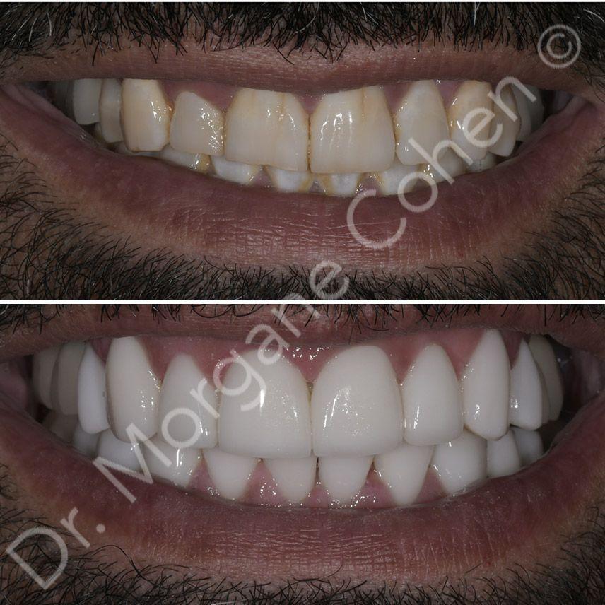 Avant-après facettes dentaires 40 à Paris | Dr Cohen