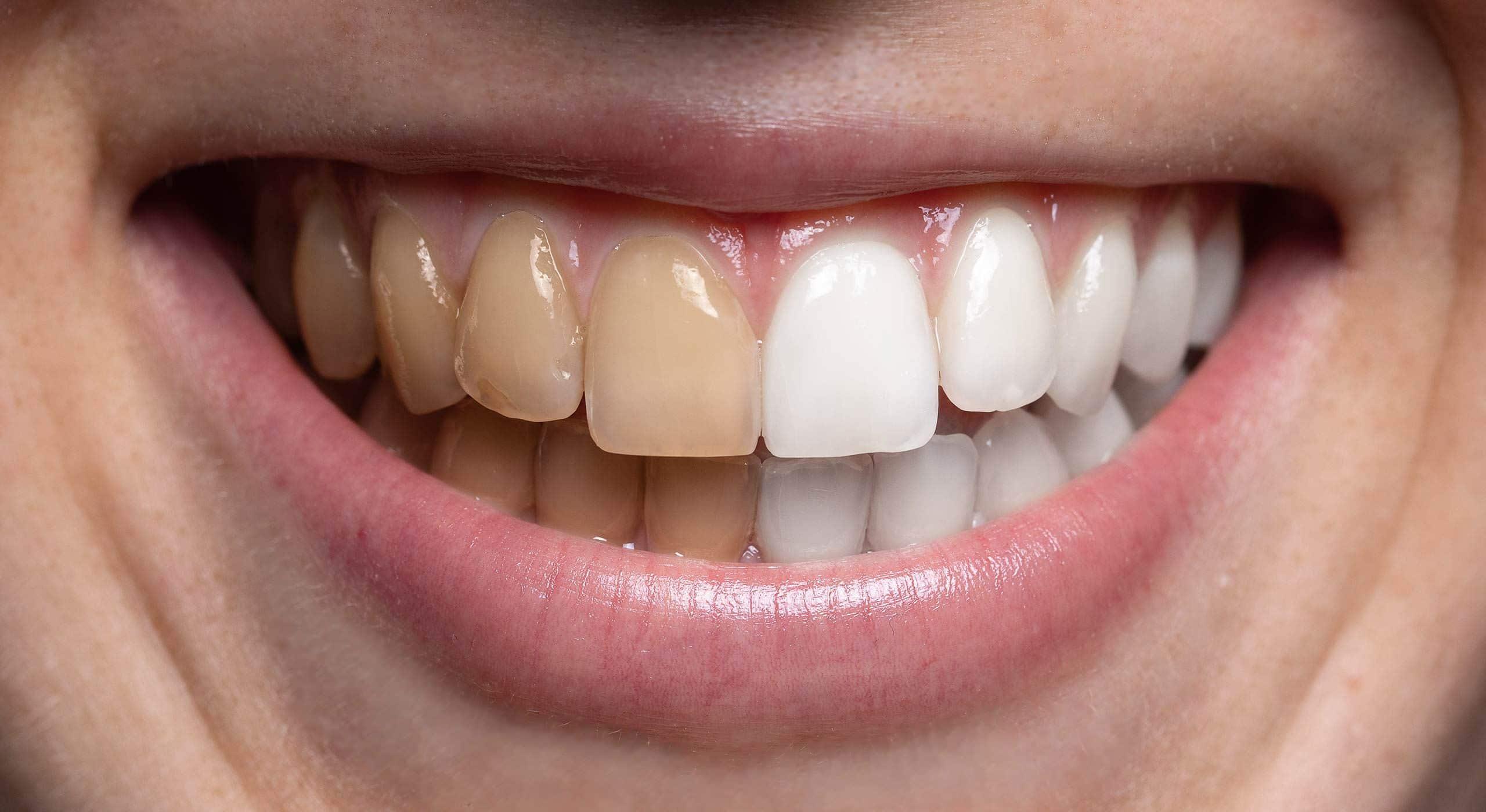 Dents blanchies à Paris | Dr Cohen