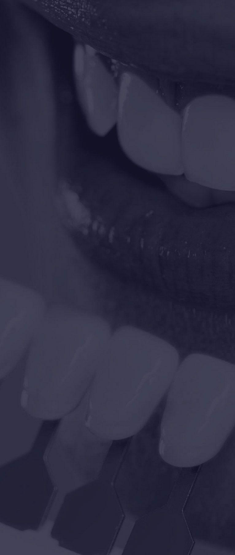 Facettes dentaires céramique à Paris | Dr Cohen
