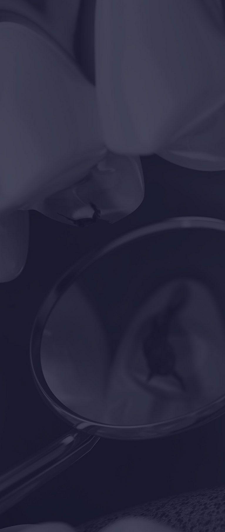 Soins pour dents cariées à Paris | Dr Cohen